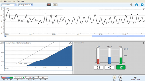Heart Rate Variability Measurement and Outcomes