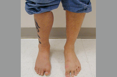 Alternative Prosthetic Services - above knee restoration replicating each patient's unique skin texture, color, and anatomy