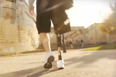 The Endolite élan foot is a revolutionary new prosthetic foot/ankle system with microprocessor controlled speed and terrain response - Sunshine Prosthetics and Orthotics, Wayne NJ
