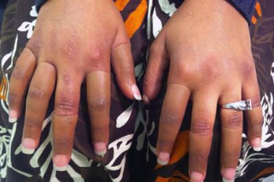 Alternative Prosthetic Services five finger restoration After