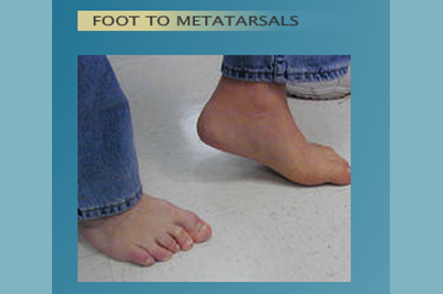 Alternative Prosthetic Services - Foot to Metatarsals after - replicating each patient's unique skin texture, color, and anatomy