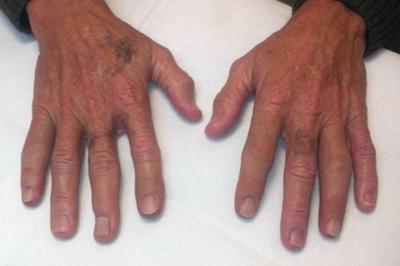Alternative Prosthetic Services four finger restoration After