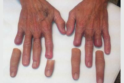 Alternative Prosthetic Services four finger restoration Before