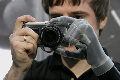 i-limb ultra prosthetic hand moves like a natural hand, each finger bends at the natural joints so that it can accurately adapt to fit around the shape of the object you want to grasp. Sunshine Prosthetics and Orthotics, Wayne NJ