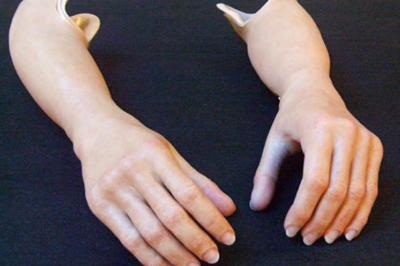 Alternative Prosthetic Services iLimb restoration