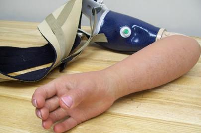 Alternative Prosthetic Services MYO electric hand restoration