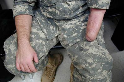 Alternative Prosthetic Services transradial hand restoration Before