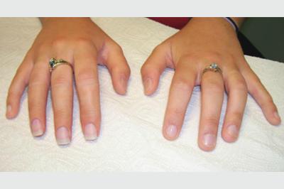 Alternative Prosthetic Services three finger restoration Afte