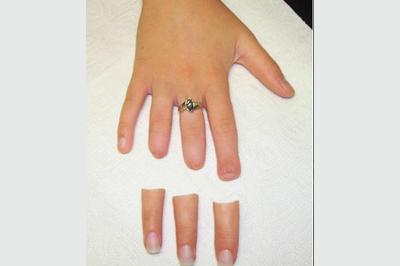 Alternative Prosthetic Services three finger restoration Before