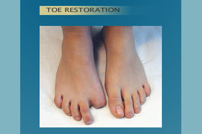 Alternative Prosthetic Services - Toe Restoration - before