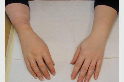 Alternative Prosthetic Services transradial hand restoration After
