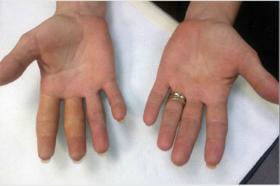 Alternative Prosthetic Services  two finger restoration After