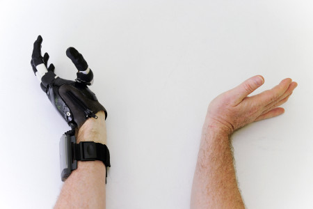wrist flexing with i-Limb Digits