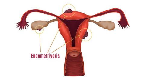 Endometriyozis