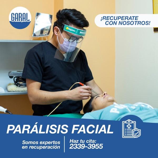 paralisis facial guatemala