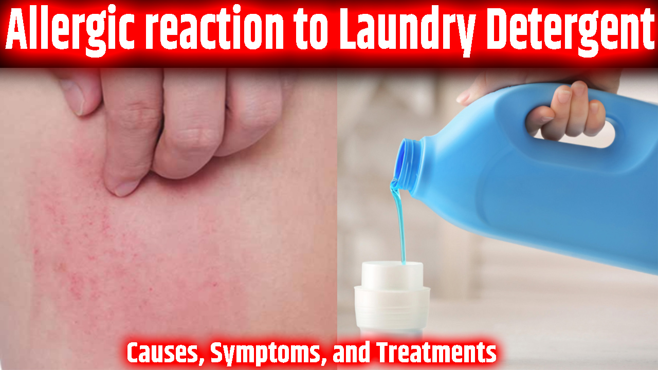 Allergic reaction to Laundry Detergent