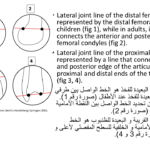 Normal alignment (33)