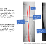Normal alignment (39)