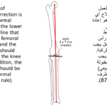 Normal alignment (40)