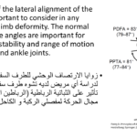 Normal alignment (42)