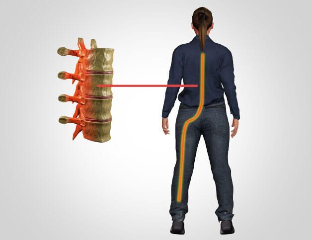Miami Chiropractic Wellness - Sciatica