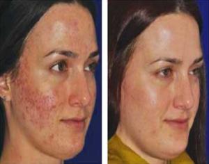 Vampire Facial Acne Scars