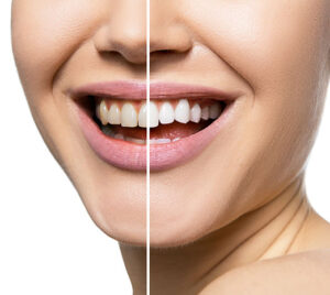 Teeth before and after care, therapy and whitening.