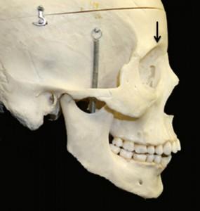 supraorbitale dry skull lateral view