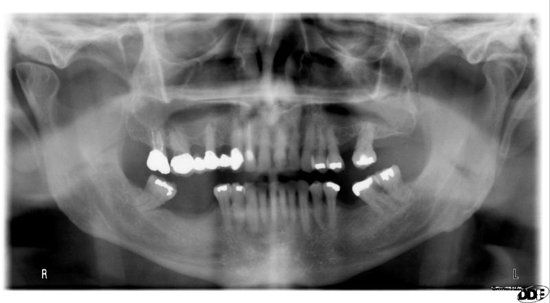 mesiodens maxilla pantomograph