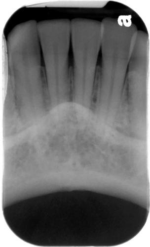 normal bone levels - anterior periapical radiograph