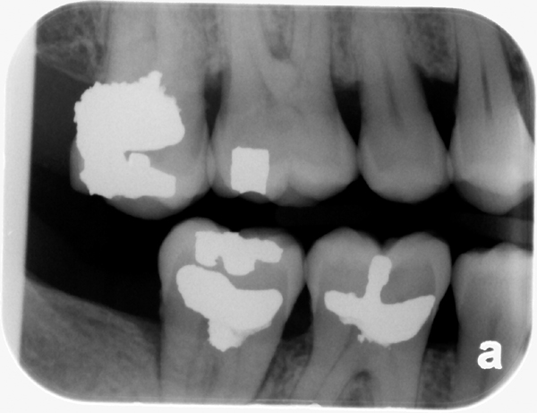 normal bone levels - bitewing radiograph