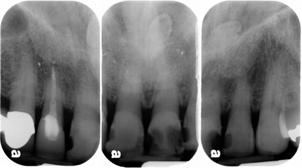 supernumerary teeth maxillary anterior periapical radiographs