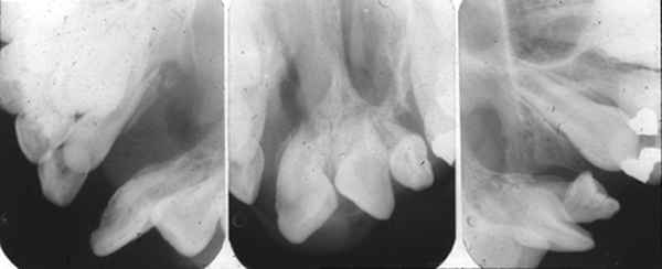 bilateral cleft palate intraoral radiographs