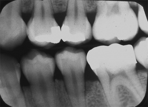 cortical plate loss bitewing
