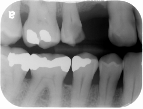 open contacts bitewing radiograph 2