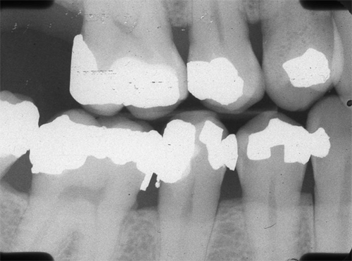overhanging and bulbous restorations