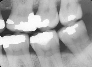 periodontal assessment vertical bone defect