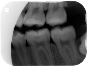occlusal caries radiograph