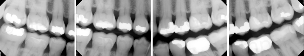 find the caries - september 2014 - bitewing radiographs
