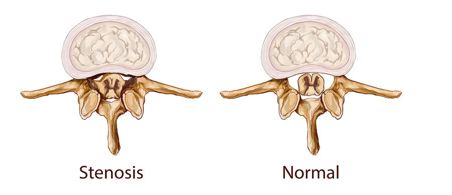 tulsa lumbar spinal stenosis