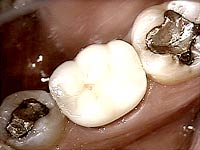 Porcelain Crowns and Dental Bridges