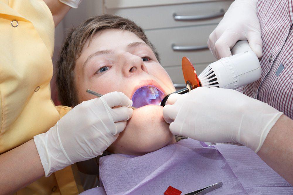 Teeth Fillings
