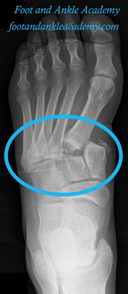 LisFranc Injury / Dislocation