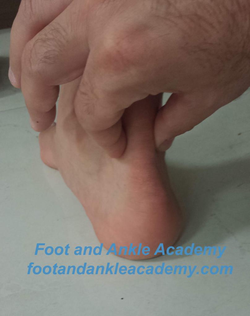 Achilles Tendinitis Treament