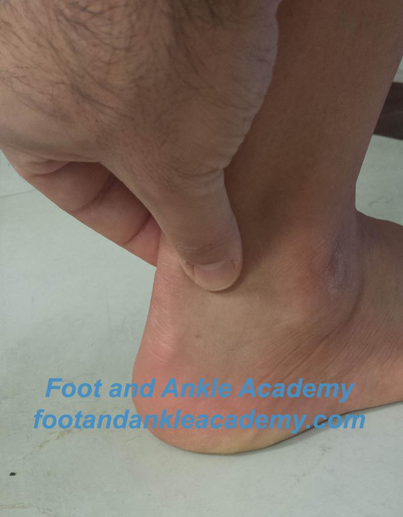 Achilles Tendinitis Treatment