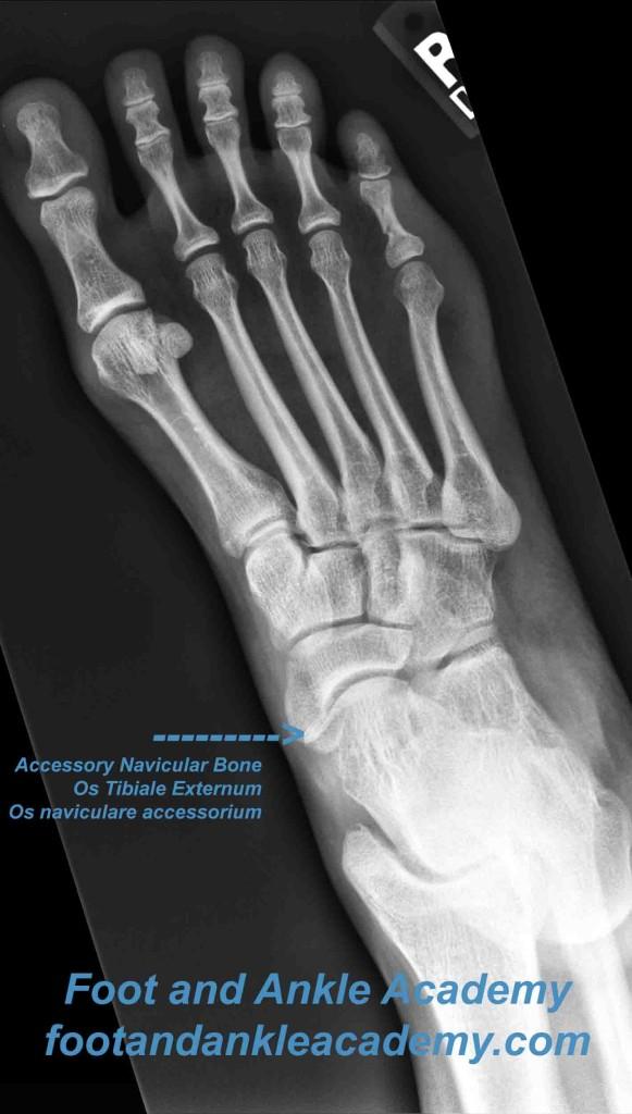 Accessory Navicular Bone, Os Tibiale Externum, Os Naviculare Accessorium