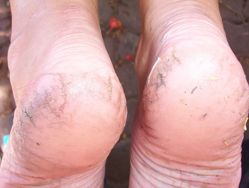 heel cracks