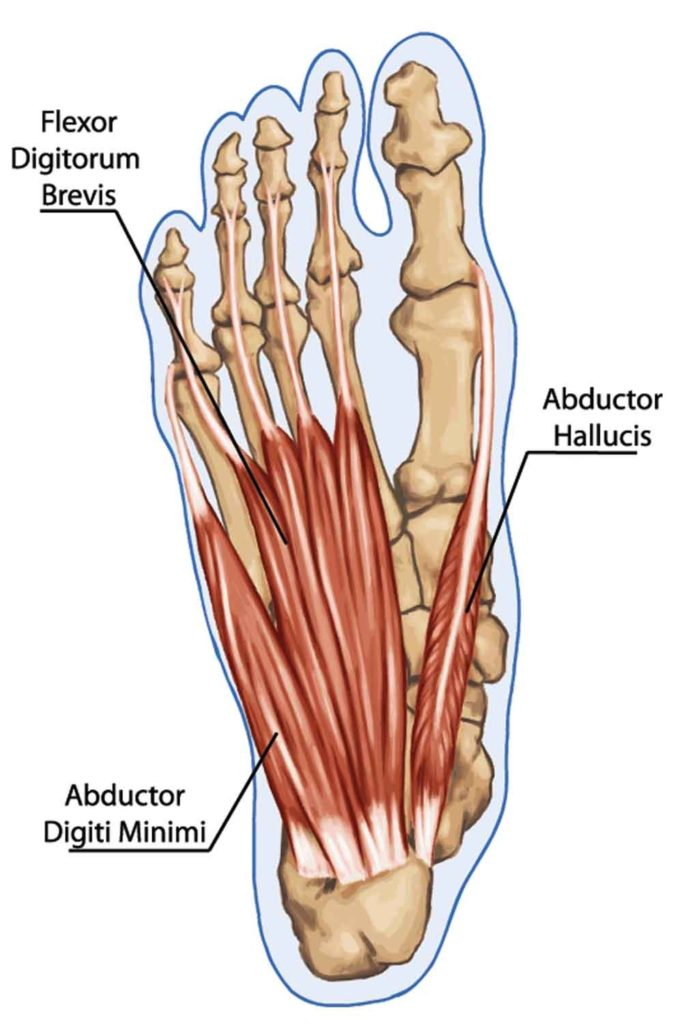 Abductor hallucis muscle strain