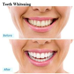https://secureservercdn.net/72.167.241.134/410.650.myftpupload.com/wp-content/uploads/2017/02/Teeth-Whitening.jpg?time=1578601063
