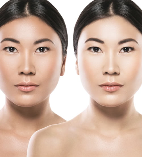 Skin lightening procedure